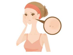 癒しのコルギ_シミ女性イラスト-1